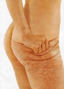Anticelulitne masaže i njihovo djelovanje